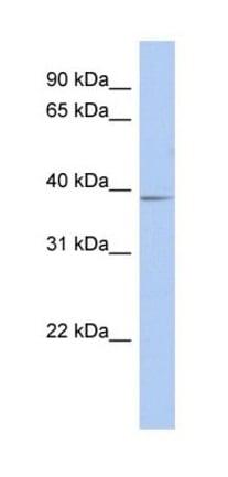 Western blot - Anti-SLC25A28 antibody (ab277516)