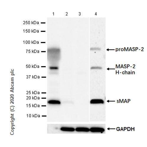 Western blot - Anti-MASP2 antibody [EPR23588-44] (ab277520)