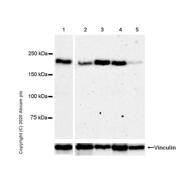 Western blot - Anti-Laminin beta 2 antibody [EPR23568-91] - BSA and Azide free (ab277530)