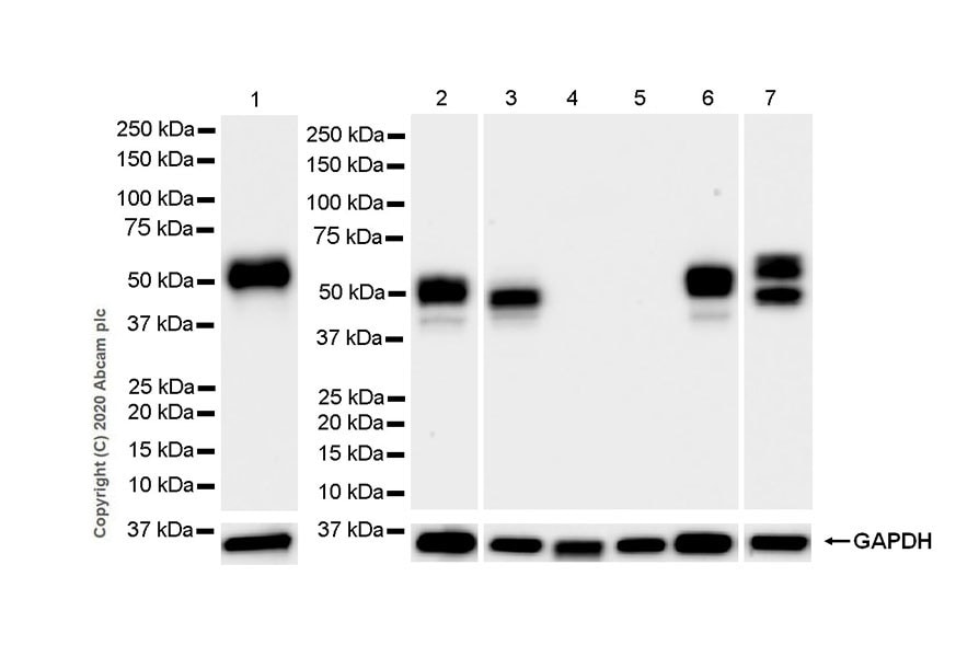 Western blot - Anti-NPTX2 antibody [EPR24020-38] - BSA and Azide free (ab277533)