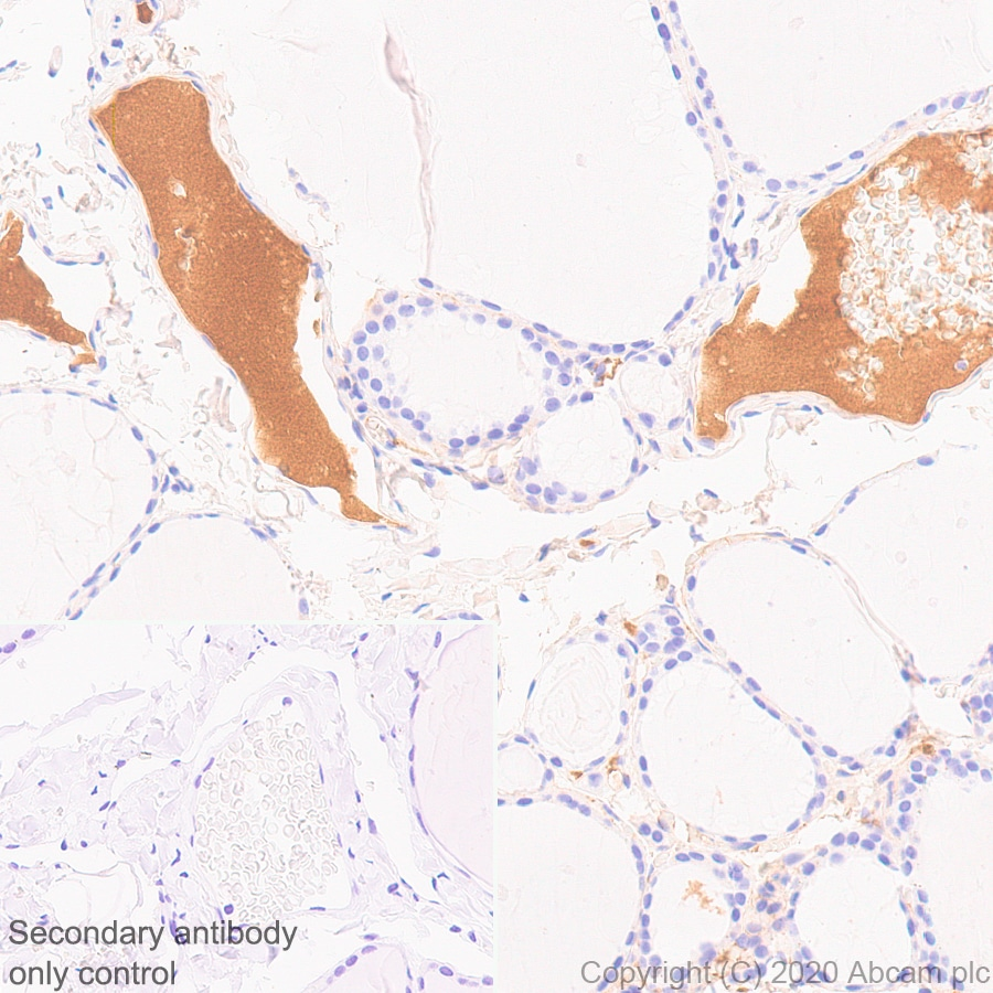 Immunohistochemistry (Formalin/PFA-fixed paraffin-embedded sections) - Anti-Complement factor 8 beta/C8B antibody [EPR23764-1] - BSA and Azide free (ab278049)