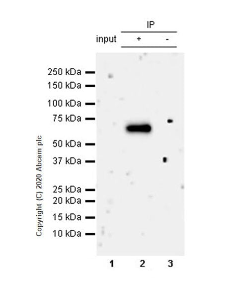 Immunoprecipitation - Anti-Complement factor 8 beta/C8B antibody [EPR23764-1] - BSA and Azide free (ab278049)