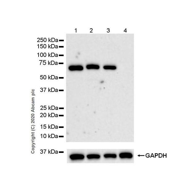 Western blot - Anti-Complement factor 8 beta/C8B antibody [EPR23764-1] - BSA and Azide free (ab278049)