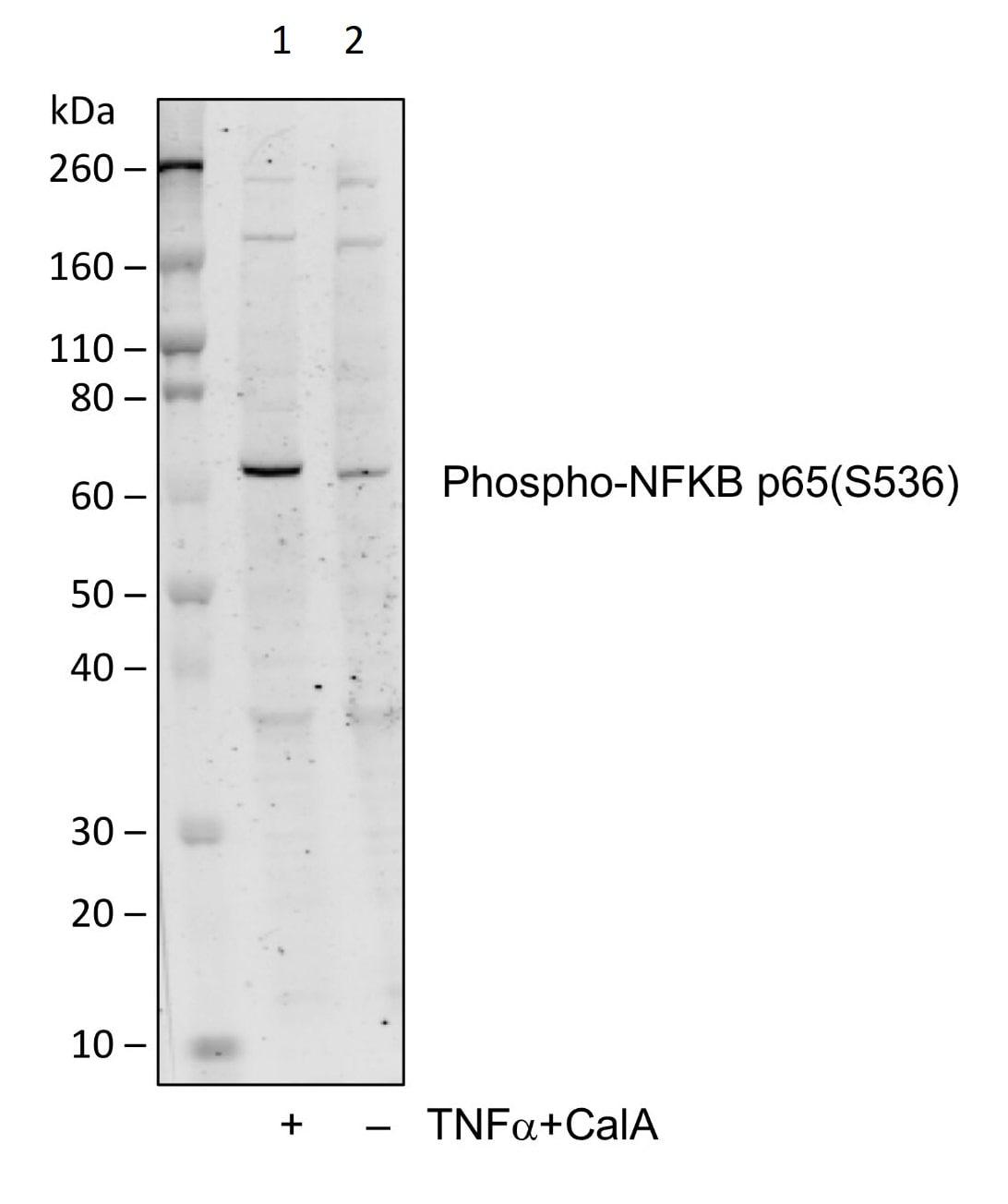 Western blot - Anti-NF-kB p65 (phospho S536) antibody [NFKBp65S536-B7] (ab278777)