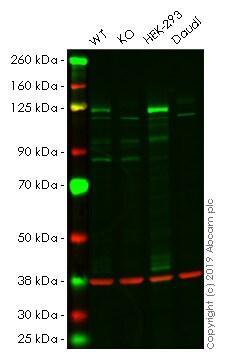 Western blot - Human DNMT3A knockout HeLa cell pellet (ab278817)