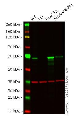 Western blot - Human CHEK2 (Chk2) knockout HeLa cell pellet (ab278823)