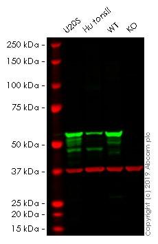 Western blot - Human VIM (Vimentin) knockout HeLa cell pellet (ab278921)