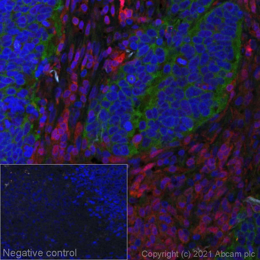 Immunohistochemistry (Formalin/PFA-fixed paraffin-embedded sections) - Alexa Fluor® 555 Anti-STAT5a antibody [E289] (ab279325)
