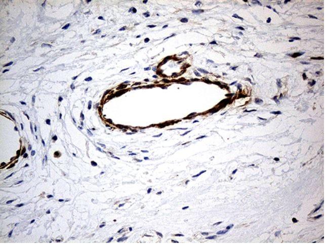 Immunohistochemistry (Formalin/PFA-fixed paraffin-embedded sections) - Anti-KIF6/Kinesin-13 antibody [OTI5G2] (ab279381)