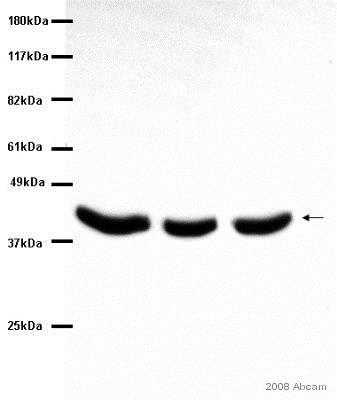 Western blot - Anti-Alpha Skeletal Muscle Actin antibody [Alpha Sr-1] (ab28052)