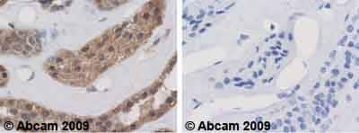 Immunohistochemistry (Formalin/PFA-fixed paraffin-embedded sections) - Anti-Calpain small subunit 1 antibody (ab28237)