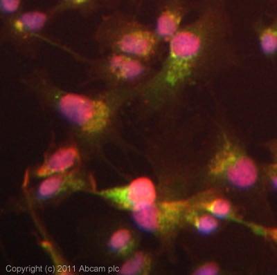 Immunocytochemistry/ Immunofluorescence - Anti-ADAMTS13 antibody (ab28273)