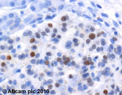 Immunohistochemistry (Formalin/PFA-fixed paraffin-embedded sections) - Anti-Cyclin D3/CCND3 antibody [DCS2.2] (ab28283)