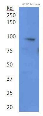 Western blot - Anti-ADAM28 antibody - Aminoterminal end (ab28292)