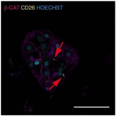 Anti-CD26 antibody (ab28340)   Abcam