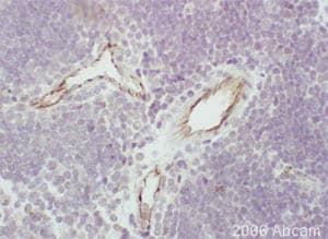 Immunohistochemistry (Formalin/PFA-fixed paraffin-embedded sections) - Anti-CD31 antibody (ab28364)