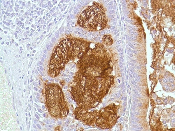 Immunohistochemistry (Formalin/PFA-fixed paraffin-embedded sections) - Anti-Mucin 5AC antibody [45M1], prediluted (ab28372)