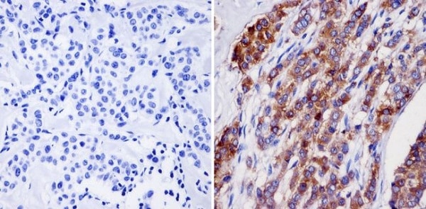 Immunohistochemistry (Formalin/PFA-fixed paraffin-embedded sections) - Anti-NMDAR2B antibody [NR2B] (ab28373)