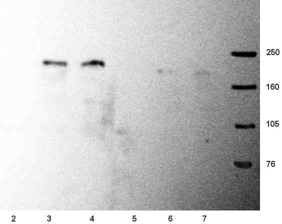 Western blot - Anti-NMDAR2B antibody [NR2B] (ab28373)