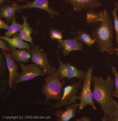 Immunocytochemistry/ Immunofluorescence - Anti-Smad3 antibody - ChIP Grade (ab28379)