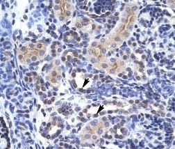 Immunohistochemistry (Formalin/PFA-fixed paraffin-embedded sections) - Anti-KAT4 / TBP Associated Factor 1 antibody (ab28450)