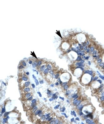 Immunohistochemistry (Formalin/PFA-fixed paraffin-embedded sections) - Anti-EVI1 antibody (ab28457)