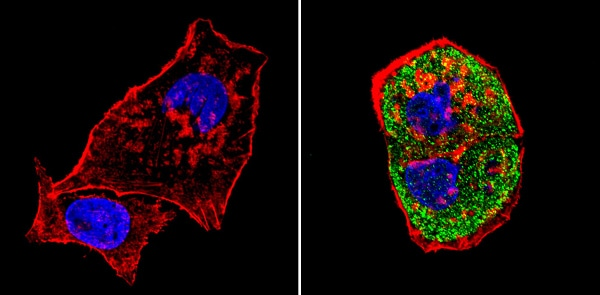 Immunocytochemistry/ Immunofluorescence - Anti-SREBP1 antibody (ab28481)