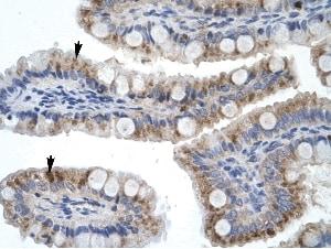 Immunohistochemistry (Formalin/PFA-fixed paraffin-embedded sections) - Anti-ZNF341 antibody (ab28485)