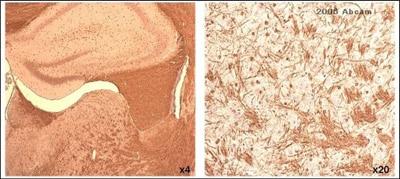 Immunohistochemistry (Formalin/PFA-fixed paraffin-embedded sections) - Anti-Myelin PLP antibody (ab28486)