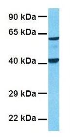 Western blot - Anti-Nicotinic Acetylcholine Receptor alpha 1/CHRNA1 antibody (ab28489)