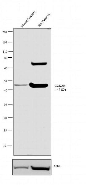 Western blot - Anti-CCK1-R antibody (ab28627)