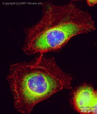 Immunocytochemistry/ Immunofluorescence - Anti-Dcp2/TDT antibody (ab28658)
