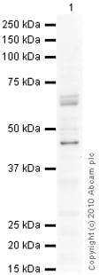 Western blot - Anti-GHRHR antibody (ab28692)