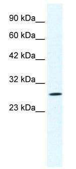 Western blot - Anti-CLIC1 antibody (ab28722)
