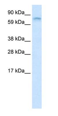 Western blot - Anti-FUBP1 / FBP antibody (ab28732)