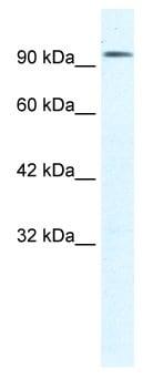 Western blot - Anti-CLC3 antibody (ab28736)