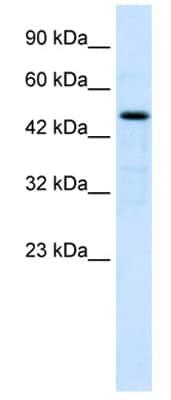 Western blot - Anti-LHX9 antibody (ab28737)