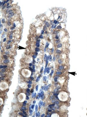 Immunohistochemistry (Formalin/PFA-fixed paraffin-embedded sections) - Anti-LHX9 antibody (ab28737)