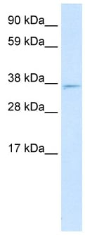Western blot - Anti-MXI1 antibody (ab28740)
