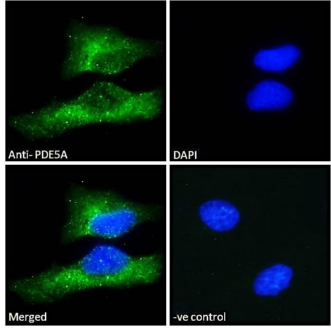Immunocytochemistry/ Immunofluorescence - Anti-PDE5A/PDE5 antibody (ab28761)