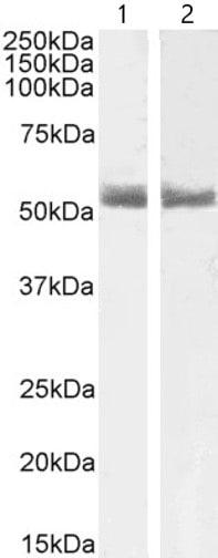Western blot - Anti-Retinoic Acid Receptor alpha antibody (ab28767)