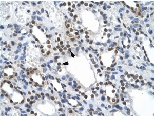 Immunohistochemistry (Formalin/PFA-fixed paraffin-embedded sections) - Anti-ILF2 antibody (ab28772)