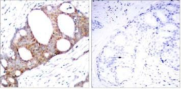 Immunohistochemistry (Formalin/PFA-fixed paraffin-embedded sections) - Anti-GSK3 alpha (phospho S21) antibody (ab28808)