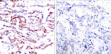 Immunohistochemistry (Formalin/PFA-fixed paraffin-embedded sections) - Anti-ATF2 (phospho T71 + T53) antibody (ab28812)