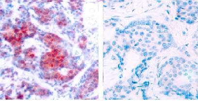 Immunohistochemistry (Formalin/PFA-fixed paraffin-embedded sections) - Anti-STAT4 (phospho Y693) antibody (ab28815)
