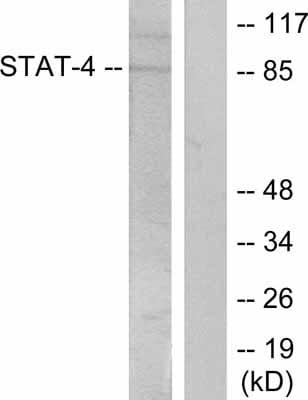 Western blot - Anti-STAT4 (phospho Y693) antibody (ab28815)