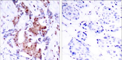Immunohistochemistry (Formalin/PFA-fixed paraffin-embedded sections) - Anti-ELK1 (phospho T417) antibody (ab28817)