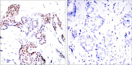 Immunohistochemistry (Formalin/PFA-fixed paraffin-embedded sections) - Anti-ELK1 (phospho S389) antibody (ab28818)