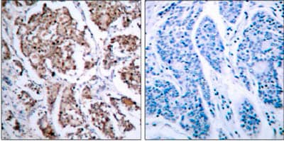 Immunohistochemistry (Formalin/PFA-fixed paraffin-embedded sections) - Anti-Bad (phospho S155) antibody (ab28825)