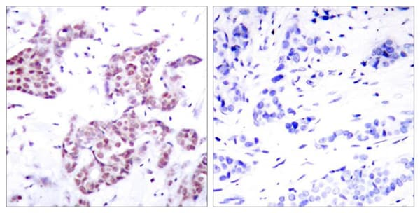 Immunohistochemistry (Formalin/PFA-fixed paraffin-embedded sections) - Anti-STAT6 (phospho Y641) antibody (ab28829)